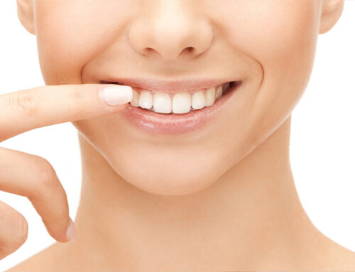 6 motivos para elegir carillas dentales